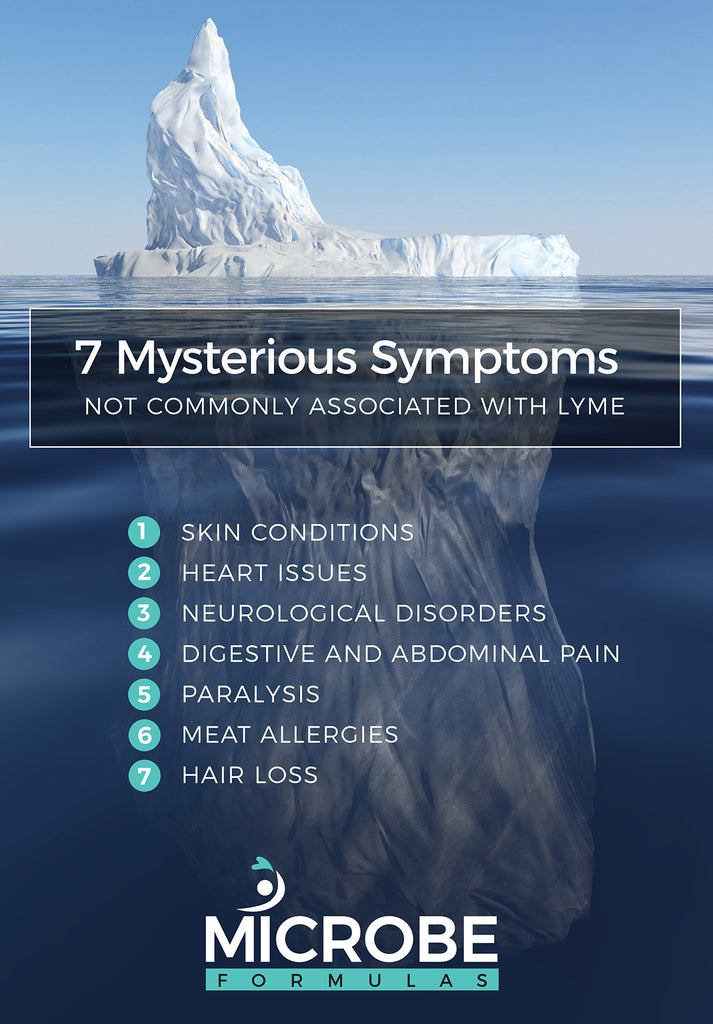 7 Mysterious Symptoms Not Commonly Associated With Lyme