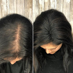 Hair Toppers for Thinning Hair – Model Lace