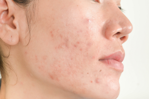 probiotics for acne