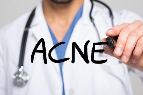 is niacinamide good for acne