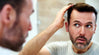 The Emotional Impact Of Hair Loss