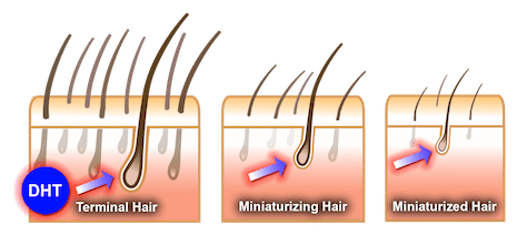 Infographic showing the effects of DHT on hair follicles