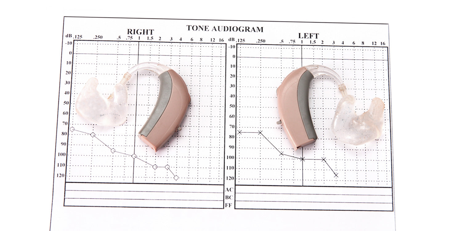 hearing aid audiogram