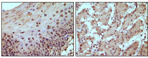 Figure 1: Immunohistochemical staining of paraffin-embedded human normal esophagus (A) and stomach (B) tissue, showing nucleus localization using Rb mouse mAb with DAB staining.