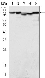 Figure 1: Western blot analysis using LSD1 mouse mAb against COS (1), Hela (2), NIH/3T3 (3), A549 (4) and Jurkat (5) cell lysate.