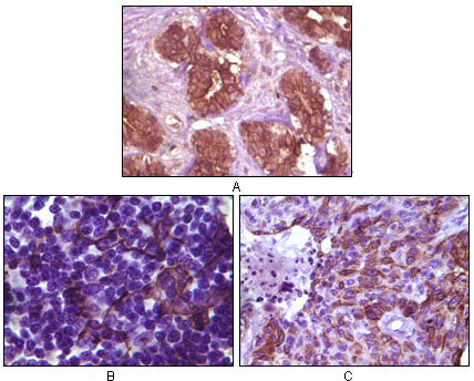Figure 1: Immunohistochemical analysis of paraffin-embedded human breast tissue (A), lymph tissue (B) and skin carcinoma (C), showing membrane localization using BLK mouse mAb with DAB staining.