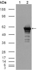 Figure 1: Western blot analysis using Desmin mouse mAb against HEK293T cells transfected with the pCMV6-ENTRY control (1) and pCMV6-ENTRY Desmin cDNA (2).