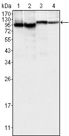 Figure 1: Western blot analysis using BTK mouse mAb against K562 (1), MCF-7 (2), Jurkat (3) and HEK293 (4) cell lysate.