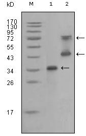 Figure 1: Western blot analysis using RET mouse mAb against truncated RET recombinant protein (1) and RET (aa658-1063)-hIgGFc transfected CHO-K1 cell lysate (2).