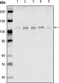Figure 1: Western blot analysis using EhpB1 mouse mAb against MDA-MB-468 (1), MDA-MB-453 (2), MCF-7 (3), T47D (4) and SKBR-3 (5) cell lysate.