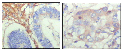 Mouse Monoclonal Antibody to FBLN5