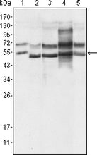 Figure 1: Western blot analysis using GABPA mouse mAb against Hela (1), A549 (2), MCF-7 (3), NIH/3T3 (4) and SMMC-7721 (5) cell lysate.