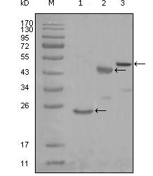 Figure 1: Western blot analysis using KARS mouse mAb against truncated Trx-KARS recombinant protein (1), truncated MBP-KARS (aa90-174) and full length KARS (aa1-188) transfected CHO-K1 cell lysate (3).