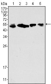 Figure 1: Western blot analysis using CK8 mouse mAb against A549 (1), Hela (2), MCF-7 (3), A431 (4) and HepG2 (5) cell lysate.