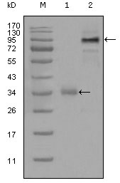 Figure 1: Western blot analysis using ETV1 mouse mAb against truncated Trx-ETV1 recombinant protein (1) and full-length ETV1 (aa1-477)-hIgGFc transfected CHO-K1 cell lysate(2).