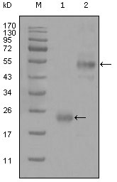 Figure 1: Western blot analysis using CD44 mouse mAb against truncated Trx-CD44 recombinant protein (1) and GST-CD44 (aa628-699) recombinant protein (2).