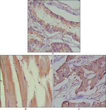 Figure 1: Immunohistochemical analysis of paraffin-embedded human lung cancer (A), muscles (B) and breast cancer (C) using MUSK mouse mAb with DAB staining.