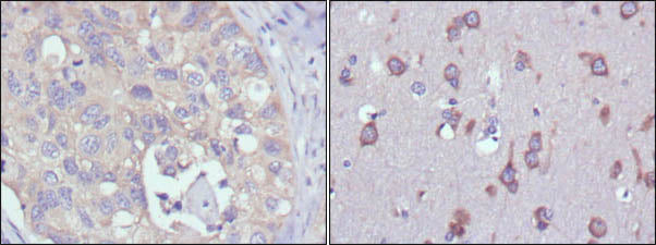 Figure 1: Immunohistochemical analysis of paraffin-embedded human lung cancer (left) and human brain (right) tissues using MPS1 mouse mAb with DAB staining.