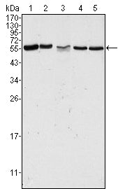 Figure 1: Western blot analysis using PAK2 mouse mAb against Hela (1), Jurkat (2), A549 (3), HEK293 (4) and K562 (5) cell lysate.