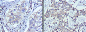 Figure 1: Immunohistochemical analysis of paraffin-embedded human lung cancer (left) and breast cancer (right) using RTN3 mouse mAb with DAB staining.