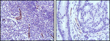 Figure 1: Immunohistochemical analysis of paraffin-embedded human lymph node (left) and colon cancer (right) tissues using eNOS mouse mAb with DAB staining.