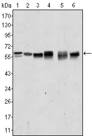 Figure 1: Western blot analysis using AKT2 mouse mAb against A431 (1), Jurkat (2), HEK293 (3), A549 (4), MCF-7 (5) and PC-12 (6) cell lysate.
