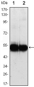 Figure 1: Western blot analysis using VCAM1 mouse mAb against HUVEC (1) and EC (2) cell lysate.