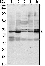 Figure 1: Western blot analysis using SMAD3 mouse mAb against A549 (1), Hela (2), Jurkat (3), PC-2 (4) and NIH/3T3 (5) cell lysate.