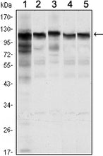 Figure 1: Western blot analysis using HK1 mouse mAb against Jurkat (1), Hela (2), HepG2 (3), MCF-7 (4) and PC-12 (5) cell lysate.