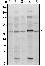 Figure 1: Western blot analysis using SMAD4 mouse mAb against A431 (1), SK-N-SH (2), K562 (3), HepG2 (4) and HUVE12 (5) cell lysate.
