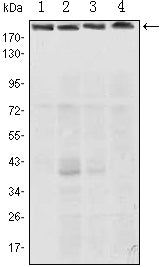 Figure 1: Western blot analysis using RICTOR mouse mAb against Hela (1), PANC-1 (2), MOLT4 (3), and HepG2 (4) cell lysate.