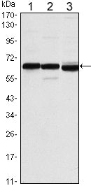 Figure 1: Western blot analysis using ESR1 mouse mAb against MCF-7 (1), T47D (2) and SKBR3 (3) cell lysate.