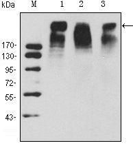 Figure 1: Western blot analysis using KI67 mouse mAb against Hela (1), MCF-7 (2) and Raji (3) cell lysate.