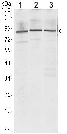 Figure 1: Western blot analysis using IGF2BP3 mouse mAb against Jurkat (1), K562 (2) and NTERA-2 (3) cell lysate.