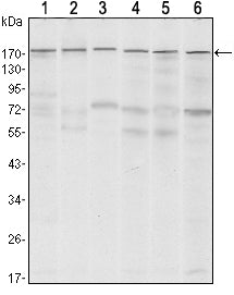 Figure 1: Western blot analysis using SETDB1 mouse mAb against MCF-7 (1)?T47D (2), HEK293 (3), JURKAT (4), NIH/3T3 (5) and F9 (6) cell lysate.