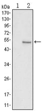 Figure 1: Western blot analysis using SUZ12 mAb against HEK293 (1) and SUZ12(AA: 533-739)-hIgGFc transfected HEK293 (2) cell lysate.