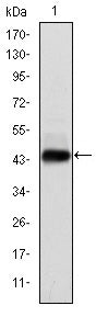 Figure 1: Western blot analysis using E7 mAb against human E7 (AA: 1-98) recombinant protein.