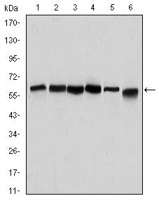 Figure 1: Western blot analysis using BECN1 mouse mAb against Hela (1), A431 (2), MCF-7 (3), RAJI (4), Jurkat (5) and SKBR-3 (6) cell lysate.