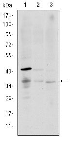 Figure 1: Western blot analysis using CD1A mouse mAb against K562 (1), RAJI (2), and MOLT4 (3) cell lysate.