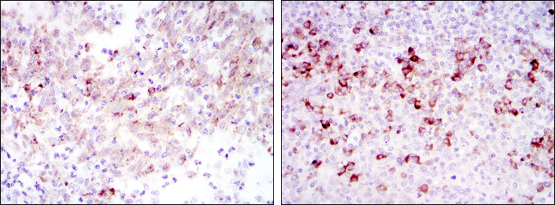 Mouse Monoclonal Antibody to CTTN