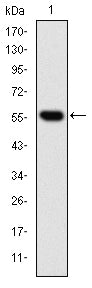 Figure 1: Western blot analysis using CCT2 mAb against human CCT2 (AA: 87-290) recombinant protein. (Expected MW is 47.9 kDa)