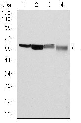 Mouse Monoclonal Antibody to G6PD