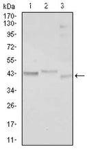 Figure 1: Western blot analysis using CEBPA mouse mAb against Jurkat (1), k562 (2), and HepG2 (3) cell lysate.