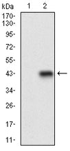 Mouse Monoclonal Antibody to CD22