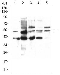 Figure 1:Western blot analysis using PPARA mouse mAb against HepG2 (1), HEK293 (2), COS7 (7), HepG2 (4), and Jurkat (5) cell lysate.