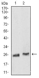 Figure 1:Western blot analysis using Rab5a mouse mAb against Hela (1) and K562 (2) cell lysate.