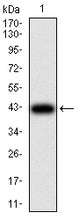 Mouse Monoclonal Antibody to GFPT1