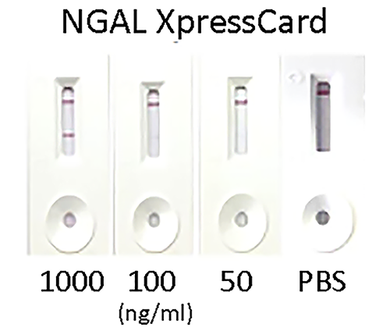 Human Neutrophil Gelatinase-Associated Lipocalin (NGAL) XpressCard (10 tests)