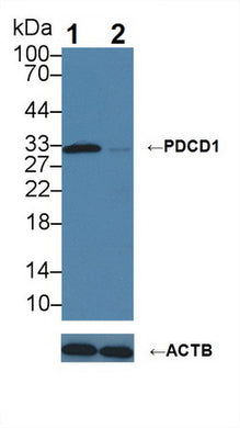 Anti-Programmed Cell Death Protein 1 (PDCD1)