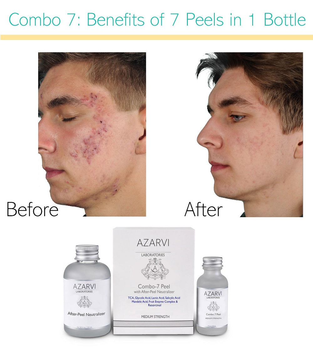 Combo 7 Chemical Peel with Neutralizer